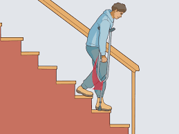 Go Down Stairs by How To Use Crutches 7 Steps With Pictures Wikihow
