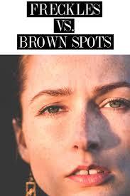 freckles vs sun damage citizens of beauty