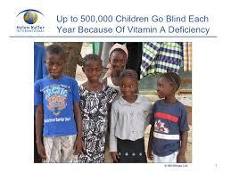 Preventing Blindness Helen Keller International Preventing Blindness In Africa
