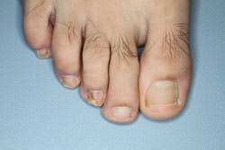 toenail fungus infection in 15 year old
