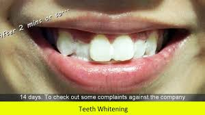 in slough looking for teeth whitening youtube