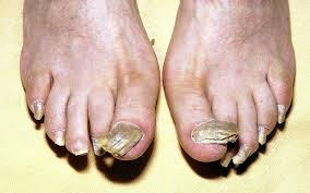 how doctors can tell if you are healthy u2013 by your nails telegraph