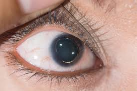 Diseases Of The Eye That Cause Blindness Isolated Ectopia Lentis Genetics Home Reference
