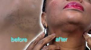 does prids work on ingrown hairs woman scarred after having laser treatment to remove hairs on chin