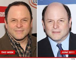 robert redford hairpiece balding and what jason alexander is doing about his hair loss