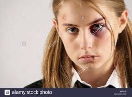 makeup effects school school girl with a black eye and injuries posed by model