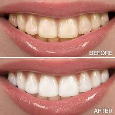 teeth whitening sherrick orthodontics rolla missouri