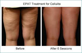 red light therapy cellulite treatment options for cellulite the cellulite institute and clinic