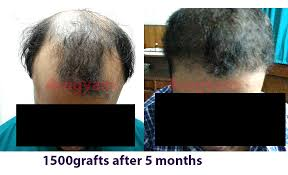 how thick is 1000 hair graft hair transplant gallery dr p j mazumdar downtown hair