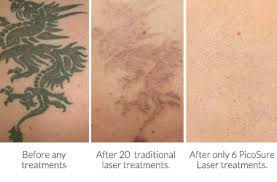 invisible ink tattoo removal kansas city invisible ink tattoo