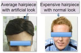 hair weaves for balding men dr bishan mahadevia s hair transplant clinic india hair