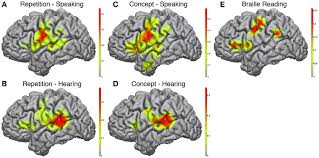 Define Cortical Blindness Frontiers Brain Mapping In A Patient With Congenital Blindness