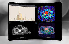 3d Medical Software 3d Viewing Software Post Processing Olea Sphere Olea