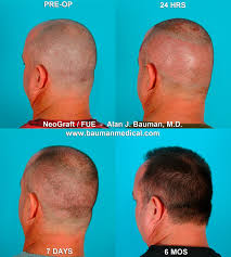 neograft recovery timeline neograft fue hair transplant in florida bauman medical