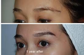 hair transplant costs in the philippines eyebrow transplantasian hair restoration center