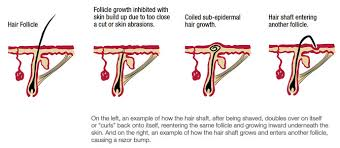 types of ingrown hair ingrown hair strange bumps have sprung up on your face they re