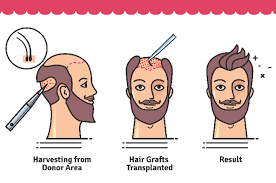 transplant hair second round draft hair transplant facts steps surgical process everything you