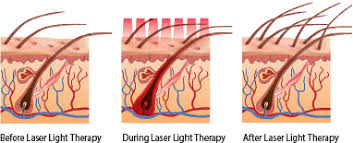How Does Light Therapy Work Laser Comb Low Level Laser Technology Lllt Distefano Hair