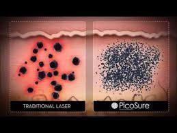 picosure laser tattoo removal for dallas and plano youtube