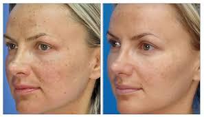 light treatment for skin skin rejuvenation treatment laser creations