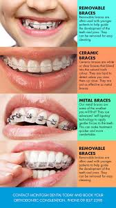 what is orthodontics mcintosh dental centre