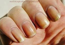 nails ridges beautify themselves with sweet nails