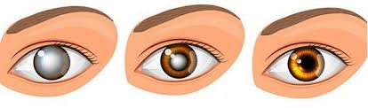 History Of Blindness Natural Remedy For Cleaning Your Eyes And Improving Vision In Only