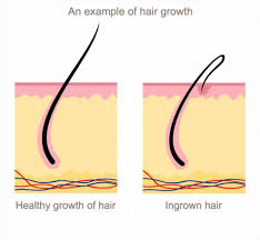types of ingrown hair ingrown hair or herpes med health daily