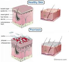 psoriasis treatment dr batra s treatment review dr batra s psoriasis treatment