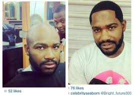 male hair extensions before and after weavon for balding men pics fashion nigeria