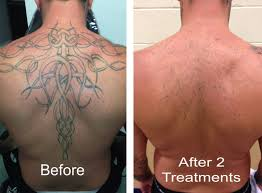 how much is laser tattoo removal disappearing ink laser tattoo