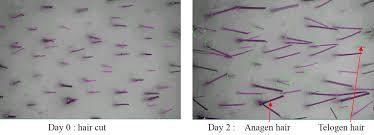 natural hair growth stimulants taiwanese made natural hair growth stimulant using plga nanoparticle