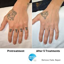 a handy repair and removal disappear ink tattoo removal