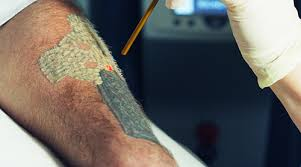 about tattoo removal gulf coast tattoo removal