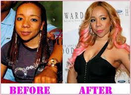 tamar braxton nose job before after 382 best plastic surgery celebrities images on pinterest celebrity