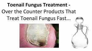 stunning nail fungus medication over the counter on small nail