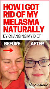 how i got rid of melasma naturally cheeseslave