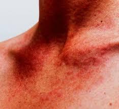 prurito testa e corpo macchie rosse sulla pelle cause e cure prof antonino di pietro