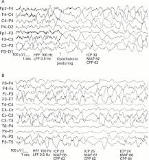Cpp Map Electroencephalographic And Clinical Features Of Cerebral Malaria