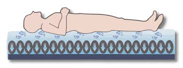 serene mattress alternating air pressure mattress system