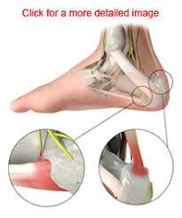 Planters Fasciitis Surgery by Plantar Fasciitis Patient Education Orthoknox Dr David