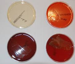 of media that will be identification of bacteria ubrocare