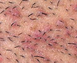 do ingrown hair hurt infected in grown hair on labia symptoms causes and treatment