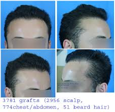 aamir khan hair transplant hair loss forum jk1 3700 fuse grafts scalp body hair 15