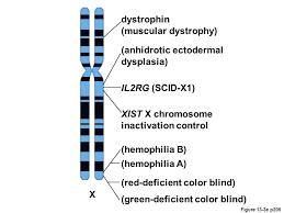 Chromosome Color Blindness Type