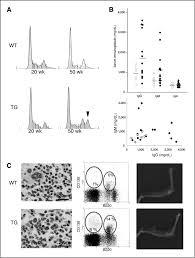 a novel transgenic mouse model of the human multiple myeloma