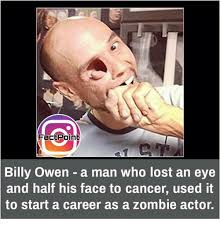 Cancer Face Meme - fact point billy owen a man who lost an eye and half his face to