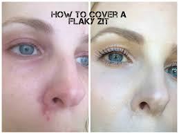 Blind Pimples On Chin How To Cover Up A Flaky Pimple Beautynow Blog