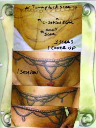 tattoos to cover up c section scars best tattoo 2017