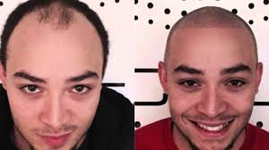 pics of scalp micropigmentation on people with long hair scalp micropigmentation before and afters youtube